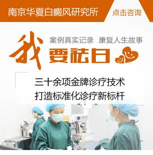 南京华夏白癜风医院在线咨询